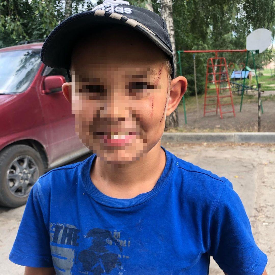 Фото Новосибирец избил 7-летнего мальчика проводом от утюга в воспитательных целях 3