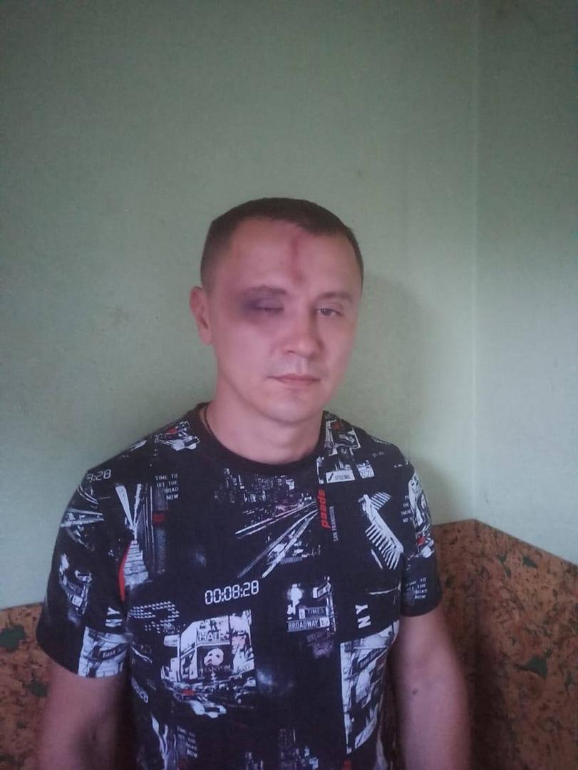 Фото «Меня запинывали, когда я увидел заострённый кастет»: дружинник из Новосибирска рассказал, за что его избила компания незнакомцев 2