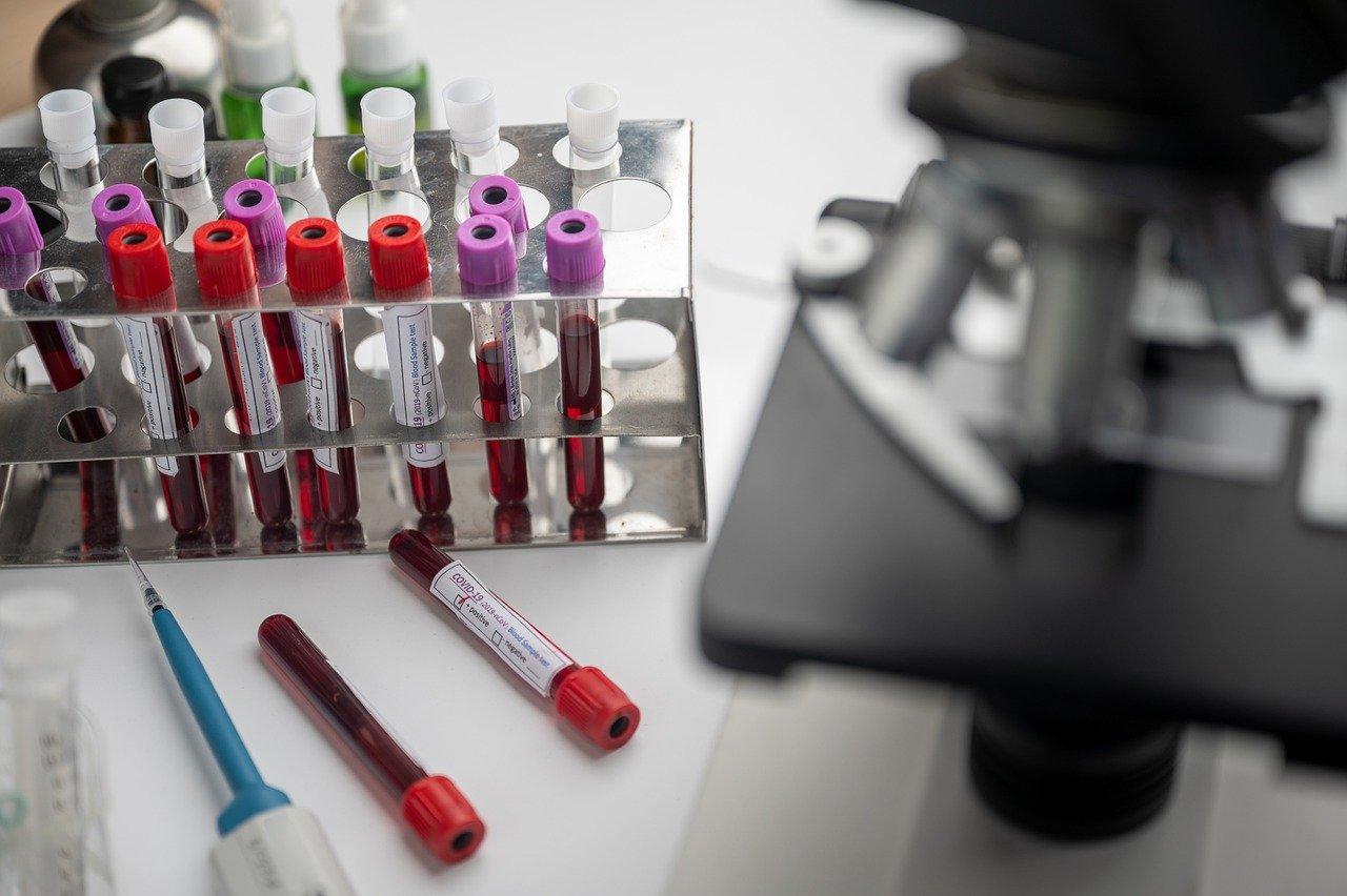 фото Врач-иммунолог рассказал, что творится с уровнем антител до и после прививки от COVID-19 3