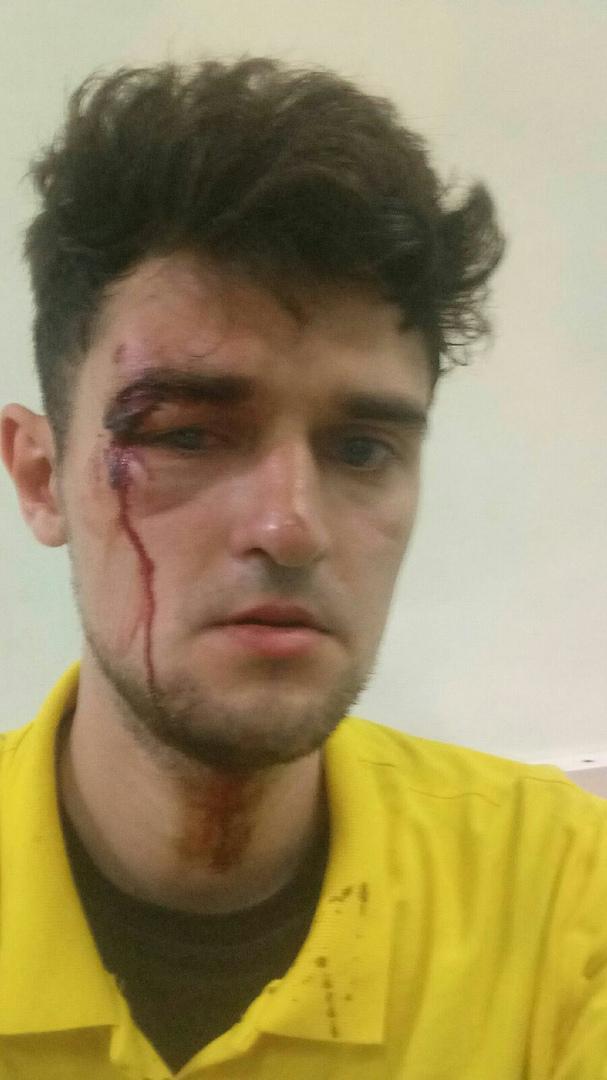 фото Водитель на Mercedes избил доставщика «Яндекс.Еды» 2