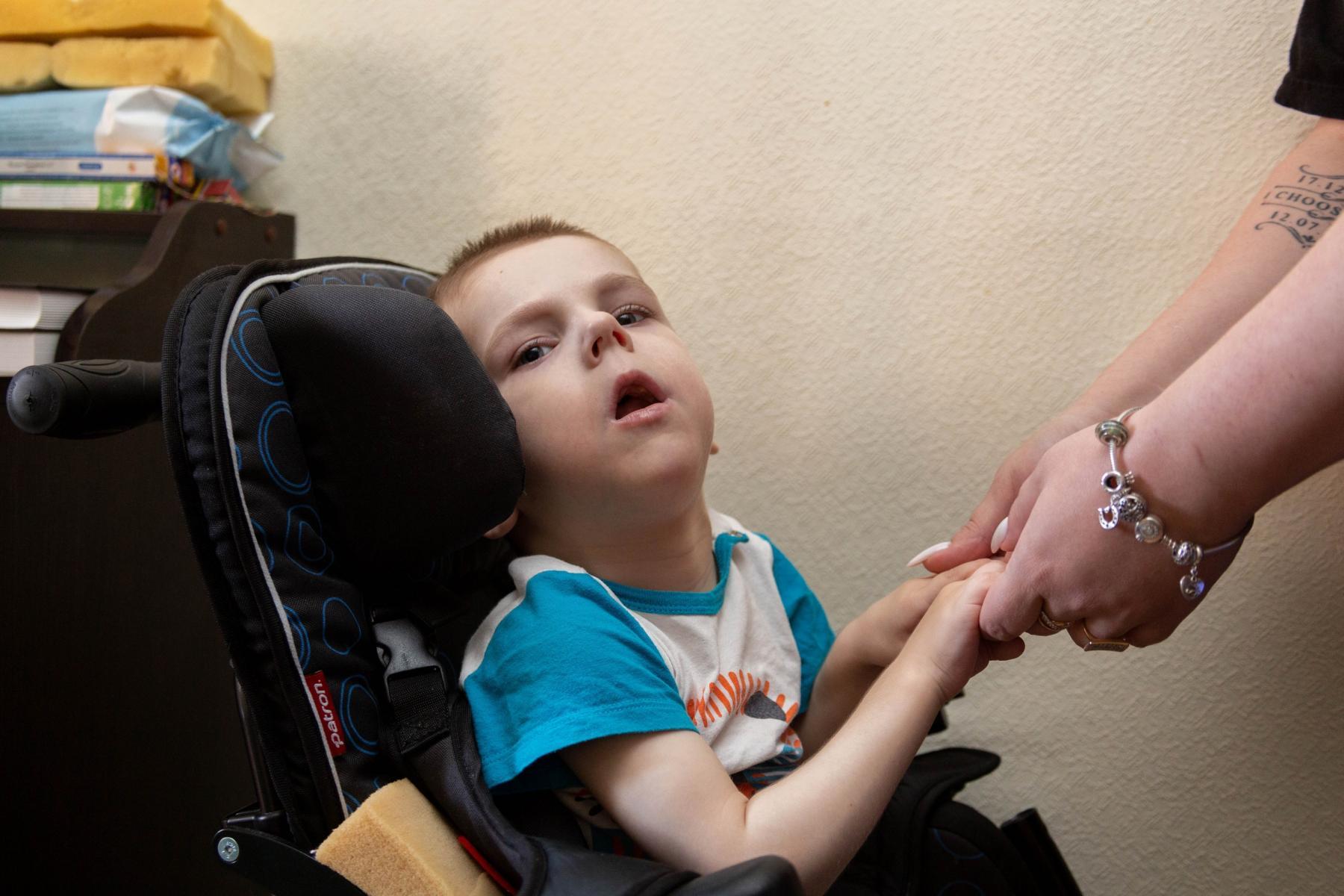 Фото История особенного мальчика Саши – такие дети рождаются один на миллион 8