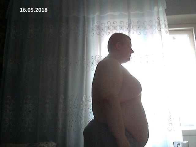 Фото Житель Новосибирска похудел на 100 кг и наконец смог выйти из дома 4