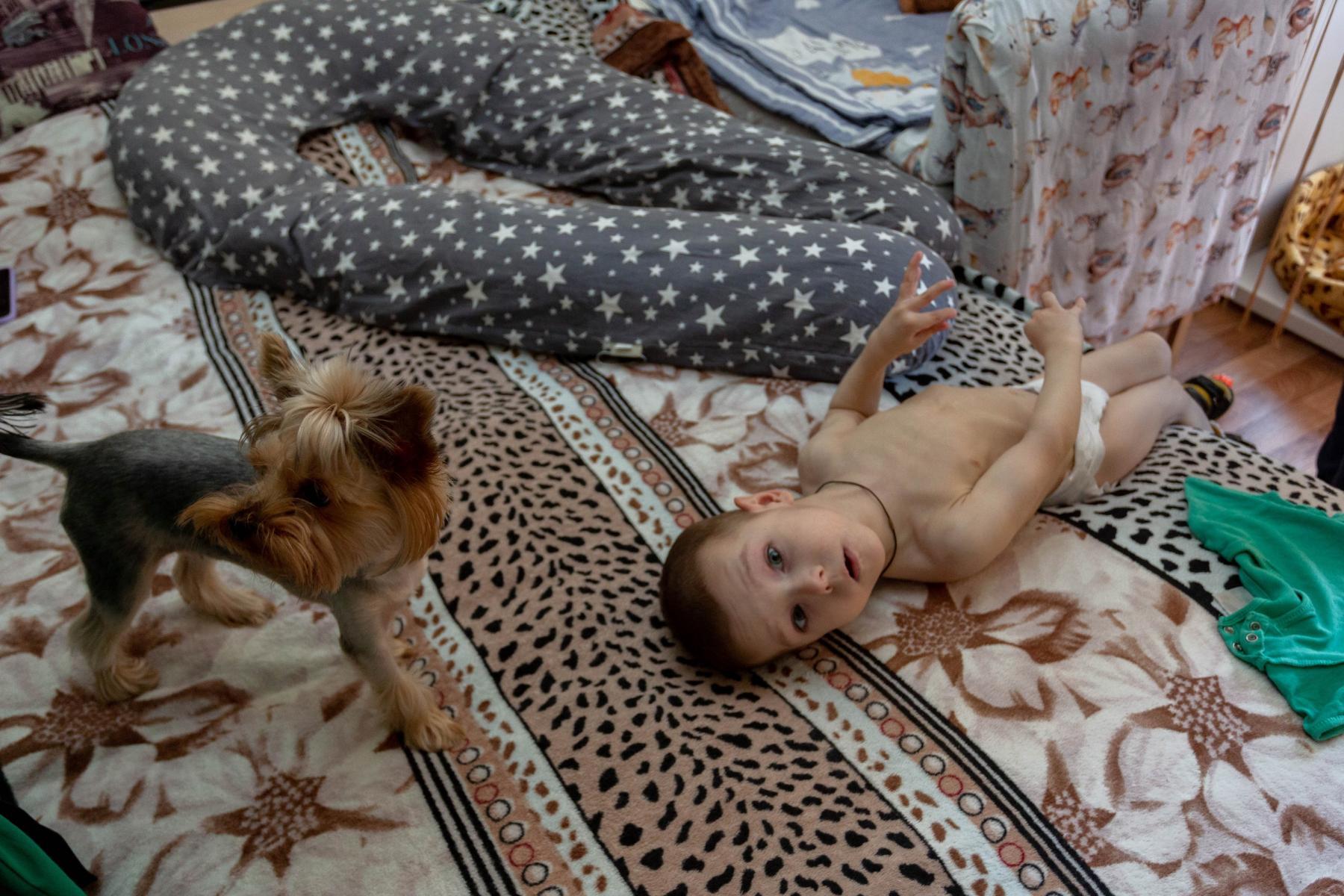 Фото История особенного мальчика Саши – такие дети рождаются один на миллион 9